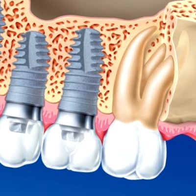Implant zęba Warszawa